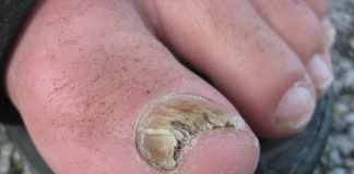 Fungus Toenail